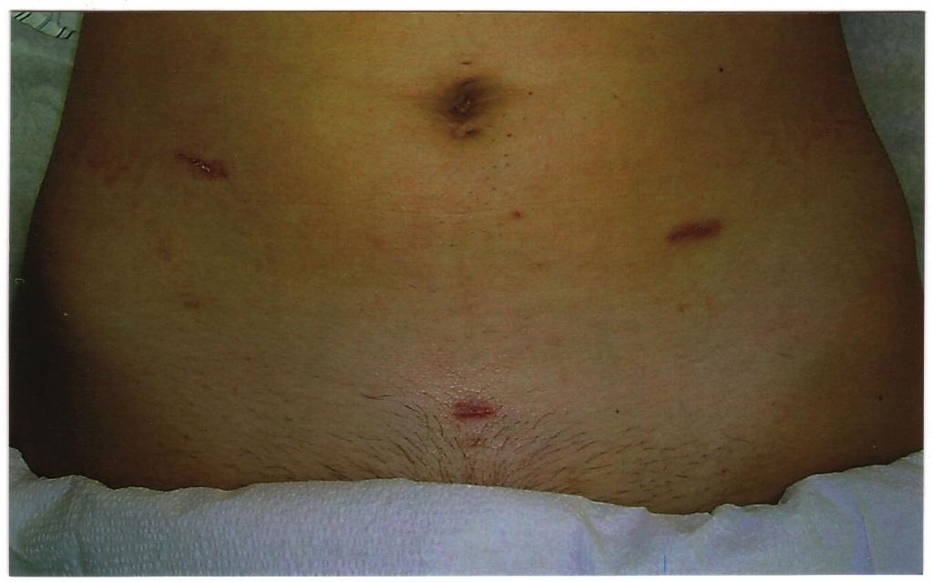 Почему болят плечи после лапароскопии