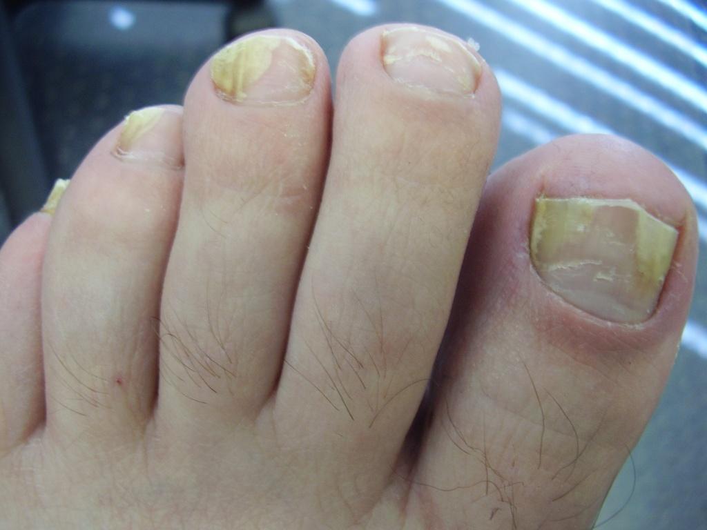 работу фото грибка ногтей на ногах Город: Петропавловск-Камчатский